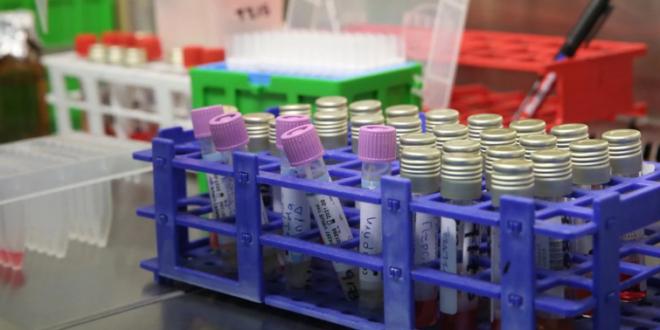 ¿Existe un sistema inmunitario natural contra el coronavirus en las personas que no han sido vacunadas?